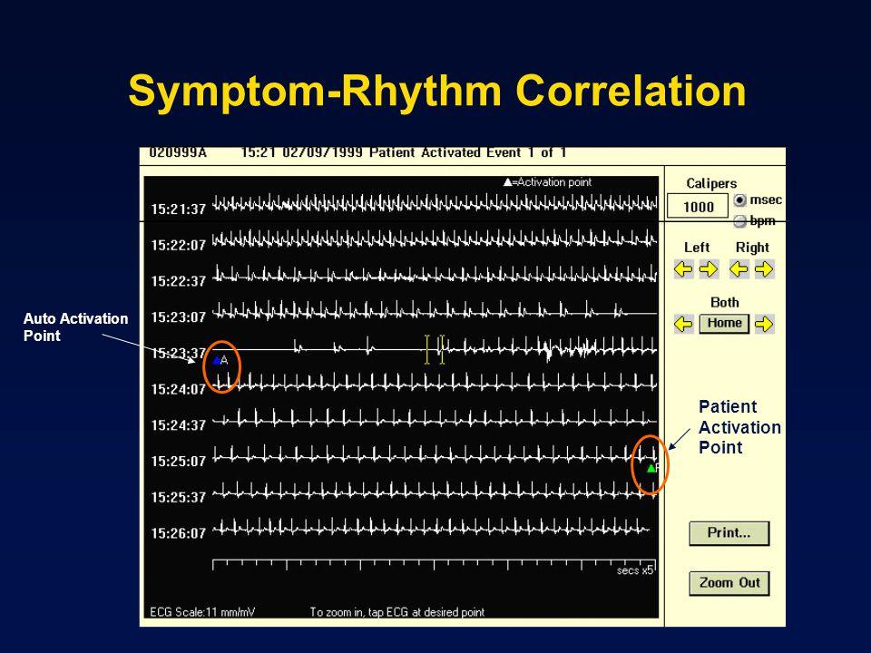 Symptom-Rhythm Correlation Auto Activation Point Patient Activation Point