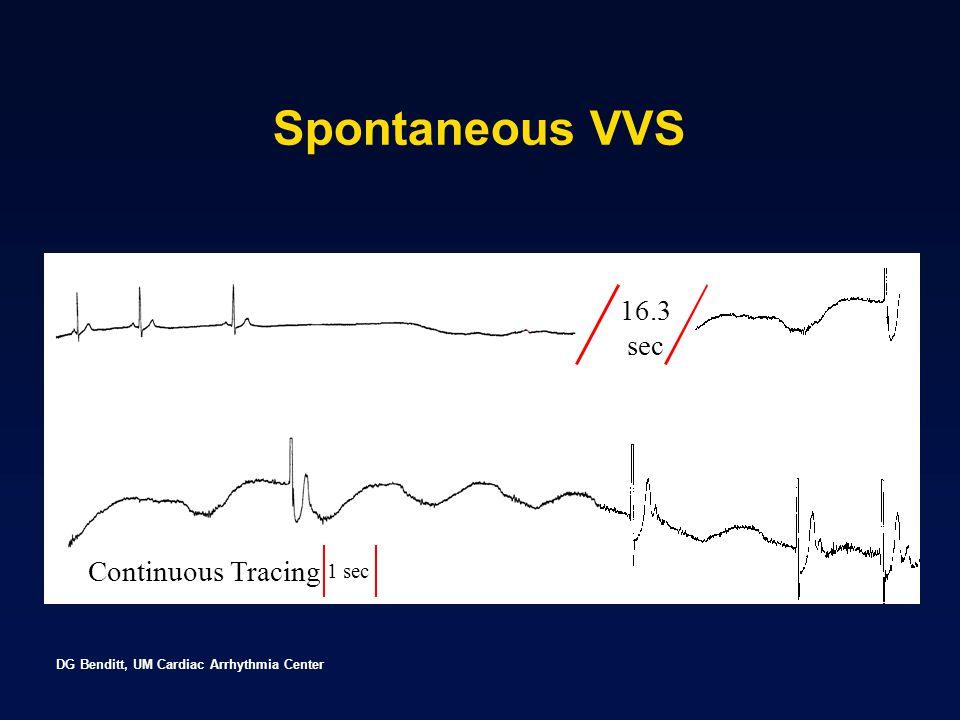 DG Benditt, UM Cardiac Arrhythmia Center 16.3 sec Continuous Tracing 1 sec Spontaneous VVS