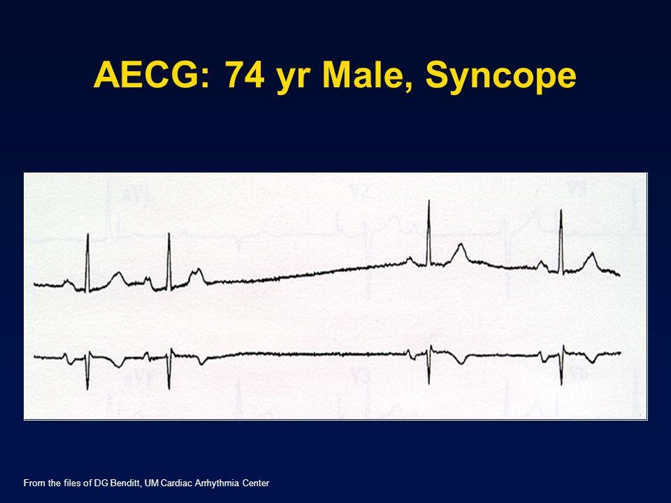 AECG: 74 yr Male, Syncope From the files of DG Benditt, UM Cardiac Arrhythmia Center