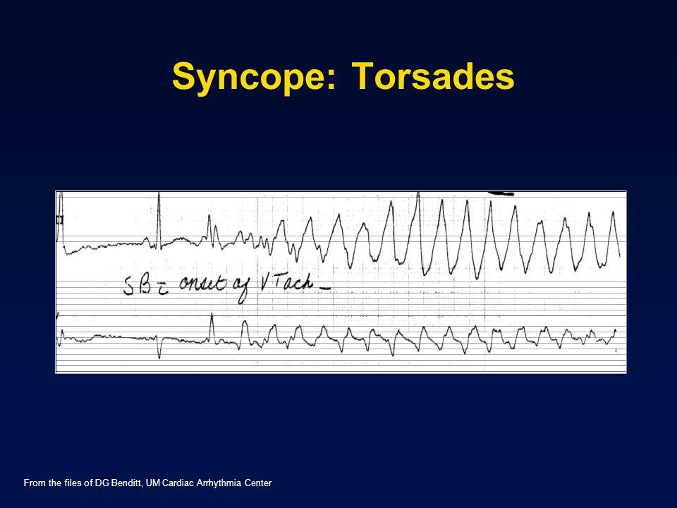 Syncope: Torsades From the files of DG Benditt, UM Cardiac Arrhythmia Center