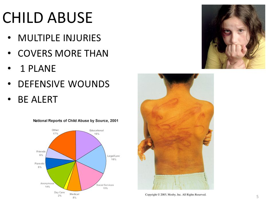 Parental Behavior Patterns Seen in Abuse lack of concern or detachment about injury lack of response to child in pain overly concerned about trivial injuries has unrealistic expectations of the child (to be behaviorally more mature) parents themselves may exhibit or have a history of: – drug or alcohol addiction – psychosis lack of trust in health professionals 26