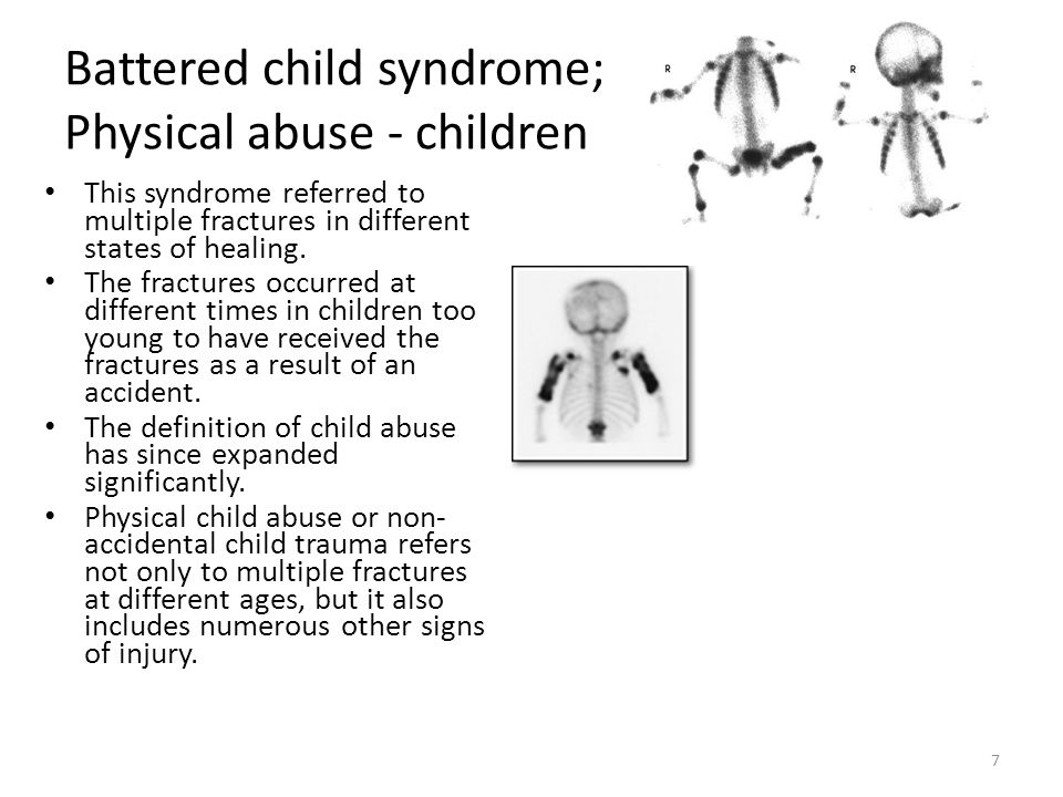 PHYSICAL ABUSE Unexplained bruises, pressure marks, black eyes, welts, lacerations, cuts, or burns Bone fractures Sprains or dislocations Bite marks or restraint marks Broken glasses Underutilization of medication or overdose – (via lab findings) Elder is not left alone with visitors Elder reports physical abuse 48