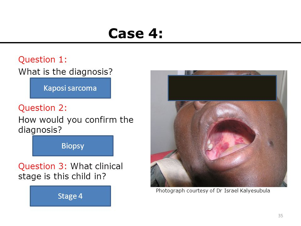 Case 4: Question 1: What is the diagnosis? Question 2: How would you confirm the diagnosis? Question 3: What clinical stage is this child in? 35 Photo