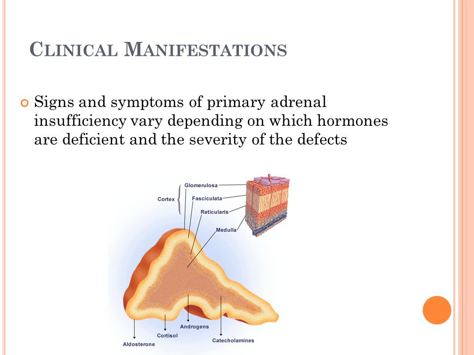 C LINICAL M ANIFESTATIONS CONT ' D Glucocorticoid Deficiency Mineralocorticoid Deficiency Adrenal Androgen Deficiency Fasting hypoglycemia HypotensionDecreased axillary hair (females) Increased insulin sensitivity DizzinessDecreased pubic hair (females) Muscle weaknessSalt cravingLoss of libido (females) Morning headacheWeight lossIf prepubescent: assymptomatic ↑ production of POMC  ↑ melanin Anorexia ↑pigmentation: palmer creases, gingival border,axilla Electrolyte anomalies (hypoNa, hyperK, metabolic acidosis)