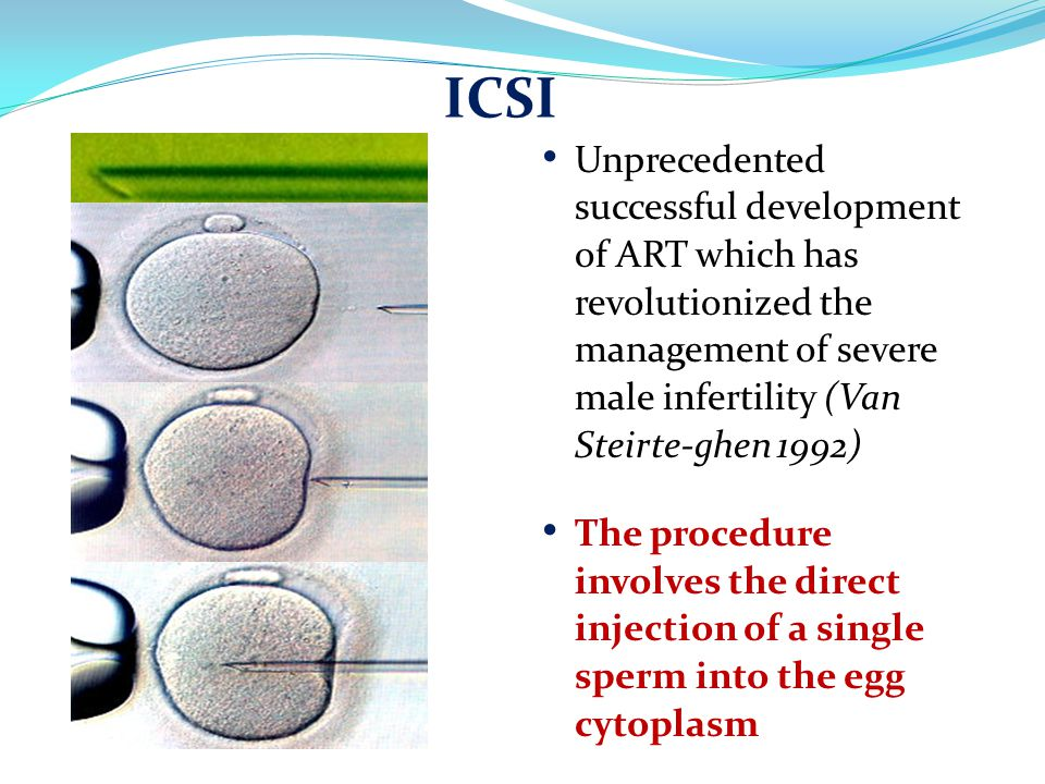Unprecedented successful development of ART which has revolutionized the management of severe male infertility (Van Steirte-ghen 1992) The procedure involves the direct injection of a single sperm into the egg cytoplasm ICSI