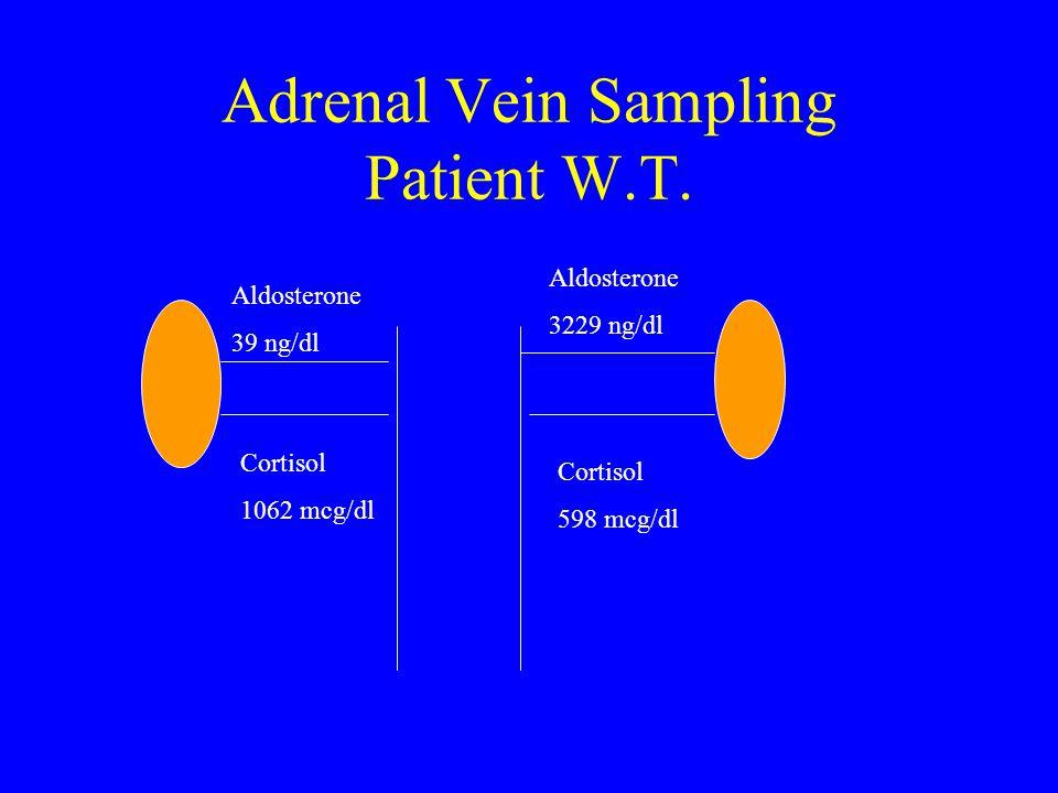 Adrenal Vein Sampling Patient W.T.