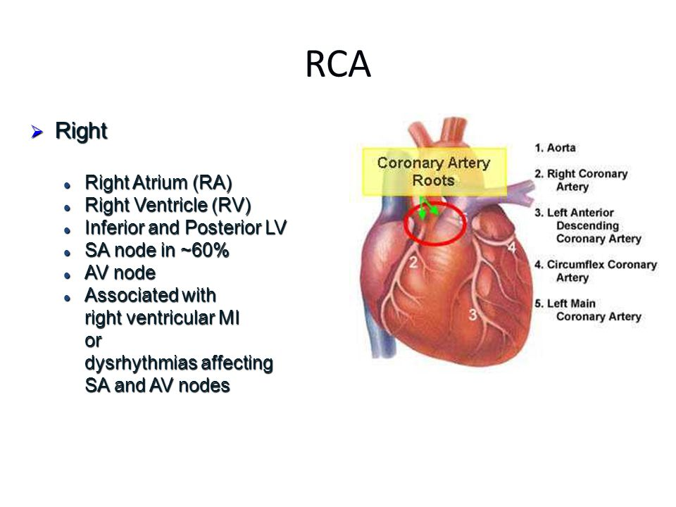RCA  Right Right Atrium (RA) Right Atrium (RA) Right Ventricle (RV) Right Ventricle (RV) Inferior and Posterior LV Inferior and Posterior LV SA node