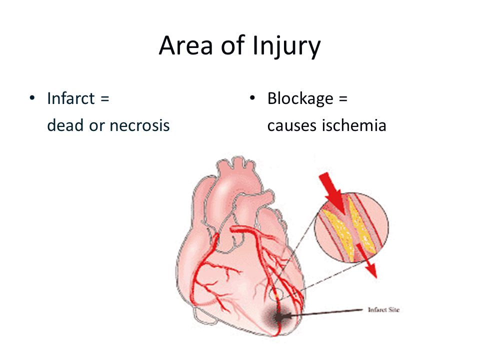 Area of Injury Infarct = dead or necrosis Blockage = causes ischemia