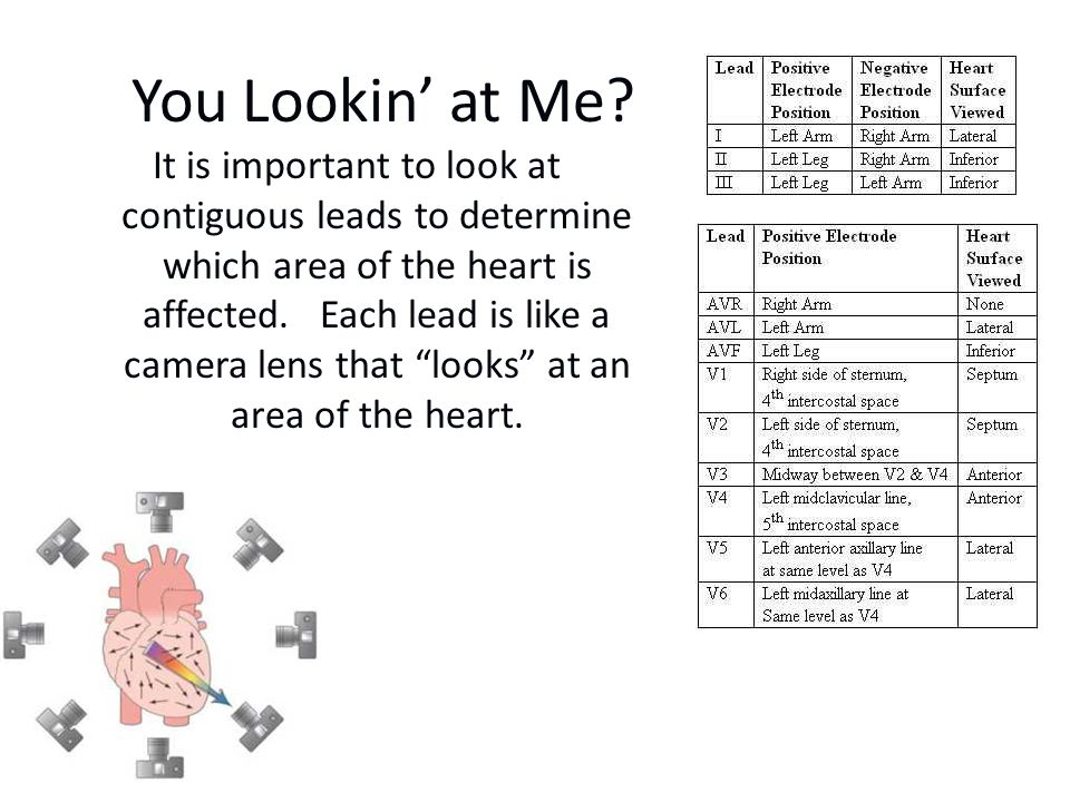 You Lookin' at Me? It is important to look at contiguous leads to determine which area of the heart is affected. Each lead is like a camera lens that