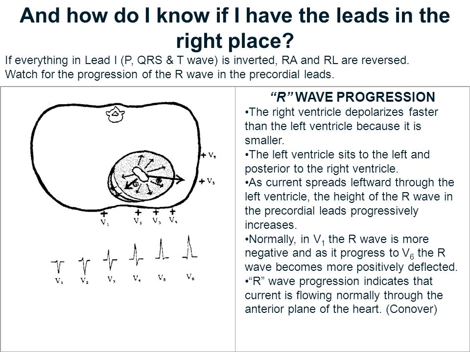 And how do I know if I have the leads in the right place? If everything in Lead I (P, QRS & T wave) is inverted, RA and RL are reversed. Watch for the