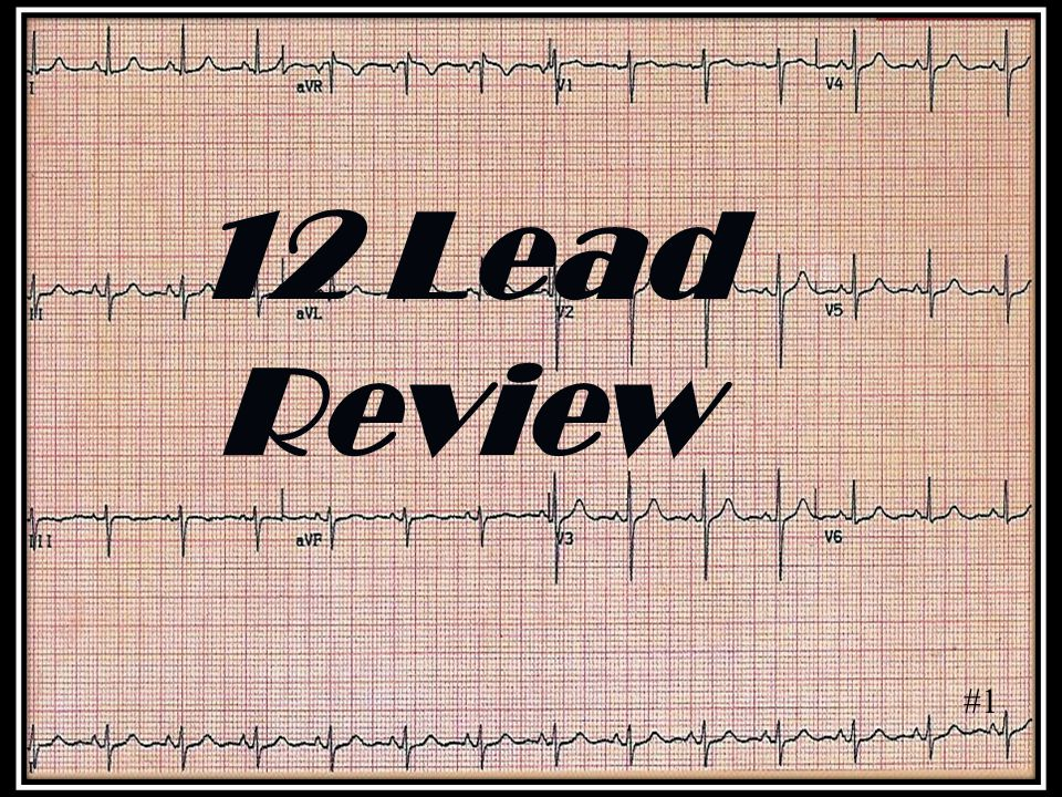 #1 12 Lead Review