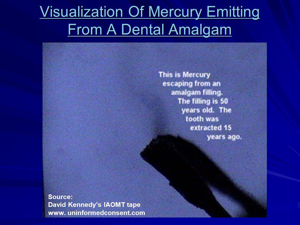 Visualization Of Mercury Emitting From A Dental Amalgam Visualization Of Mercury Emitting From A Dental Amalgam Source: David Kennedy's IAOMT tape www