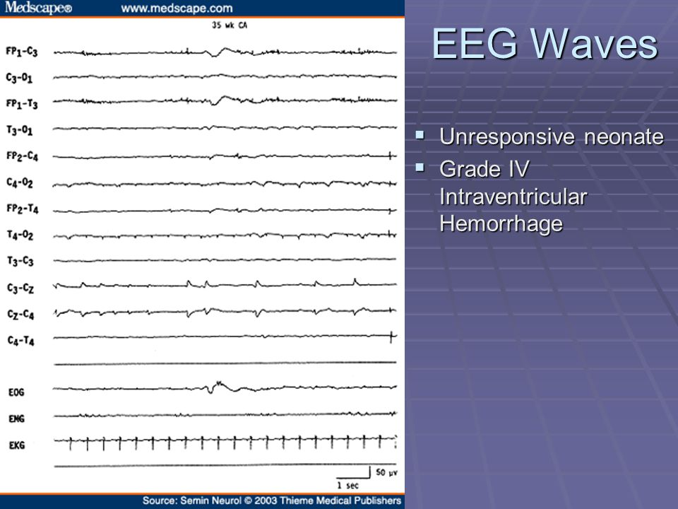 EEG Waves  Unresponsive neonate  Grade IV Intraventricular Hemorrhage