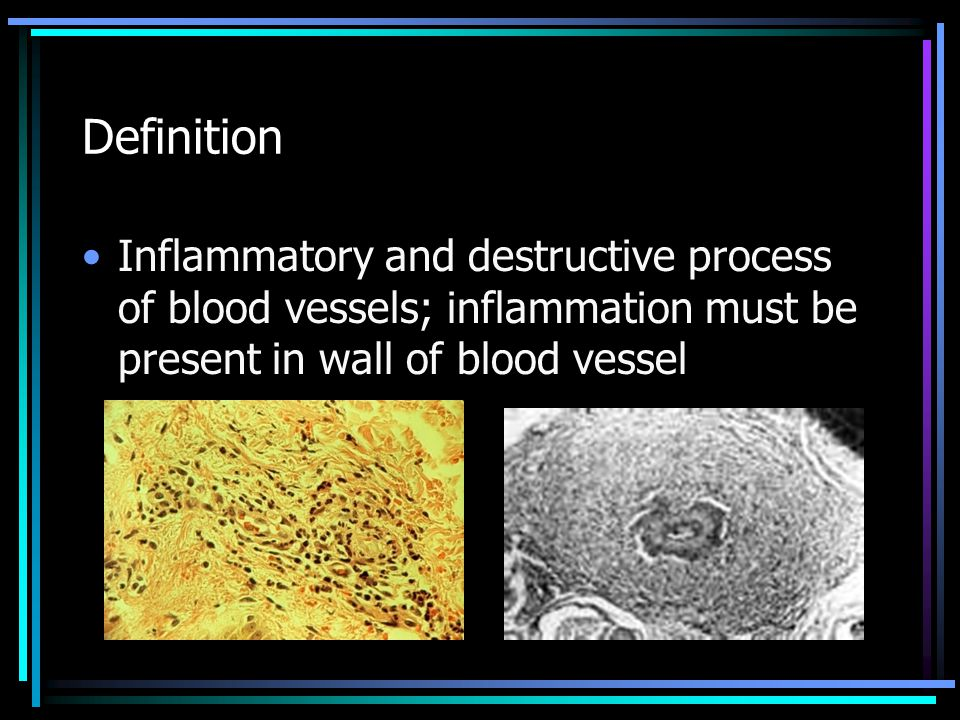 Definition Inflammatory and destructive process of blood vessels; inflammation must be present in wall of blood vessel