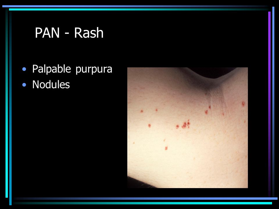 PAN - Rash Palpable purpura Nodules
