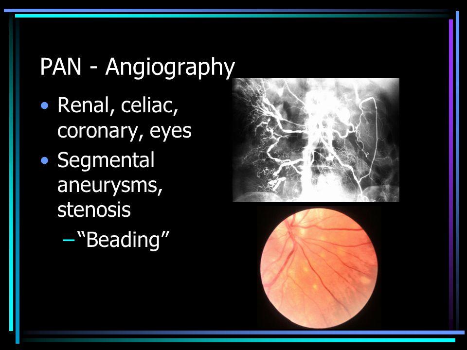 "PAN - Angiography Renal, celiac, coronary, eyes Segmental aneurysms, stenosis –""Beading"""
