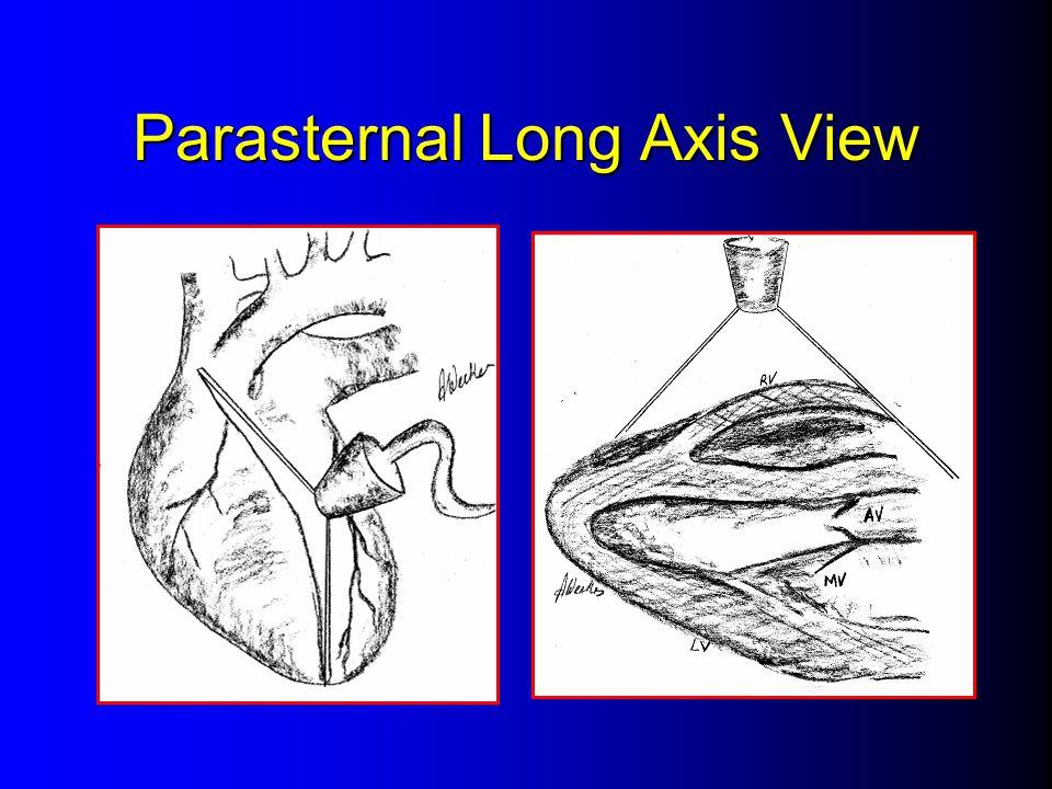 Parasternal Long Axis View