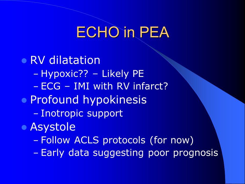 ECHO in PEA RV dilatation – Hypoxic?.– Likely PE – ECG – IMI with RV infarct.
