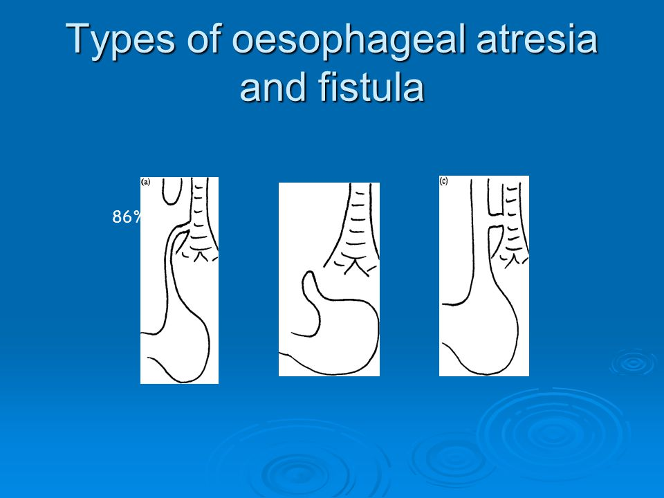 Types of oesophageal atresia and fistula 86%7% 4%