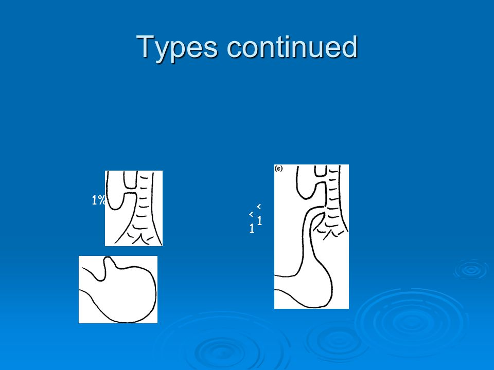 Types continued 1% <1<1 <1<1