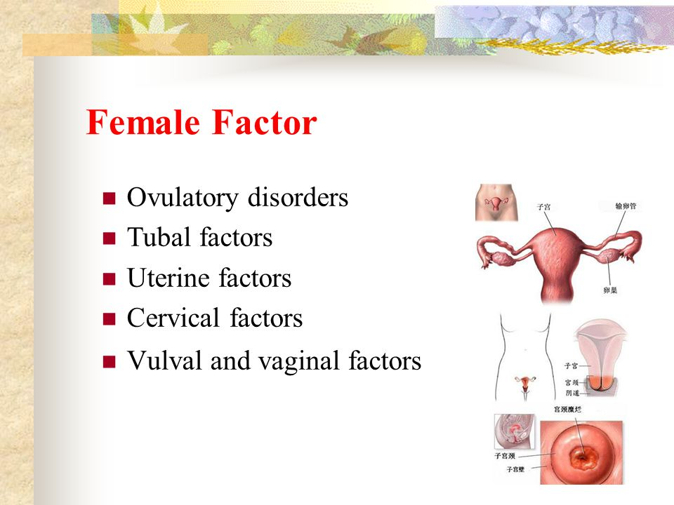Ovulatory disorders Hypothalamic dysfunction Pituitary dysfunction Ovarian factor Others Hypothalamic-pituitary- ovary axis