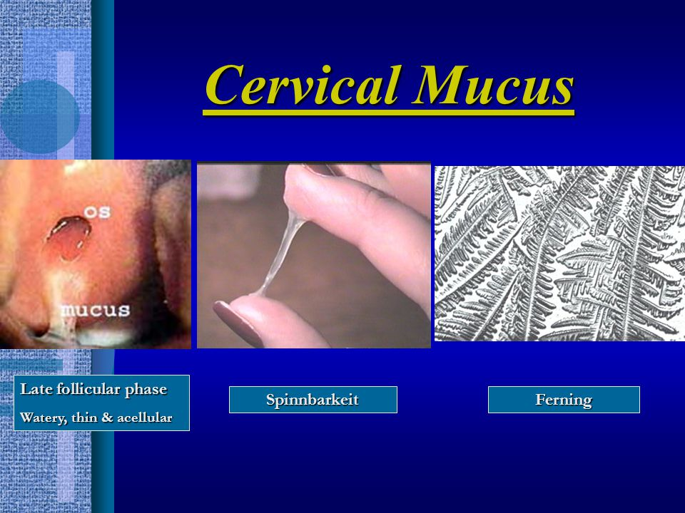Cervical Function Tests: –Culture for suspected pathogens –Postcoital test (PCT) Scheduled around 1-2d before ovulation (increased estrogen effect) 48 0 of male abstinence before test No lubricants Evaluate 8-12h after coitus (overnight is ok!) Remove mucus from cervix (forceps, syringe) Tests: –Culture for suspected pathogens –Postcoital test (PCT) Scheduled around 1-2d before ovulation (increased estrogen effect) 48 0 of male abstinence before test No lubricants Evaluate 8-12h after coitus (overnight is ok!) Remove mucus from cervix (forceps, syringe)
