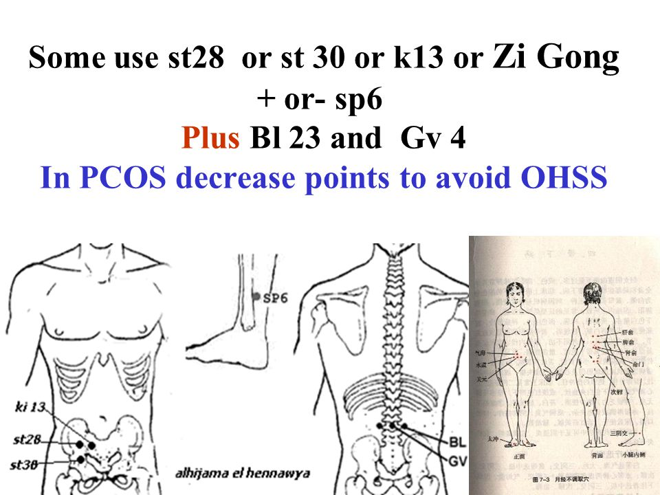 Some use st28 or st 30 or k13 or Zi Gong + or- sp6 Plus Bl 23 and Gv 4 In PCOS decrease points to avoid OHSS