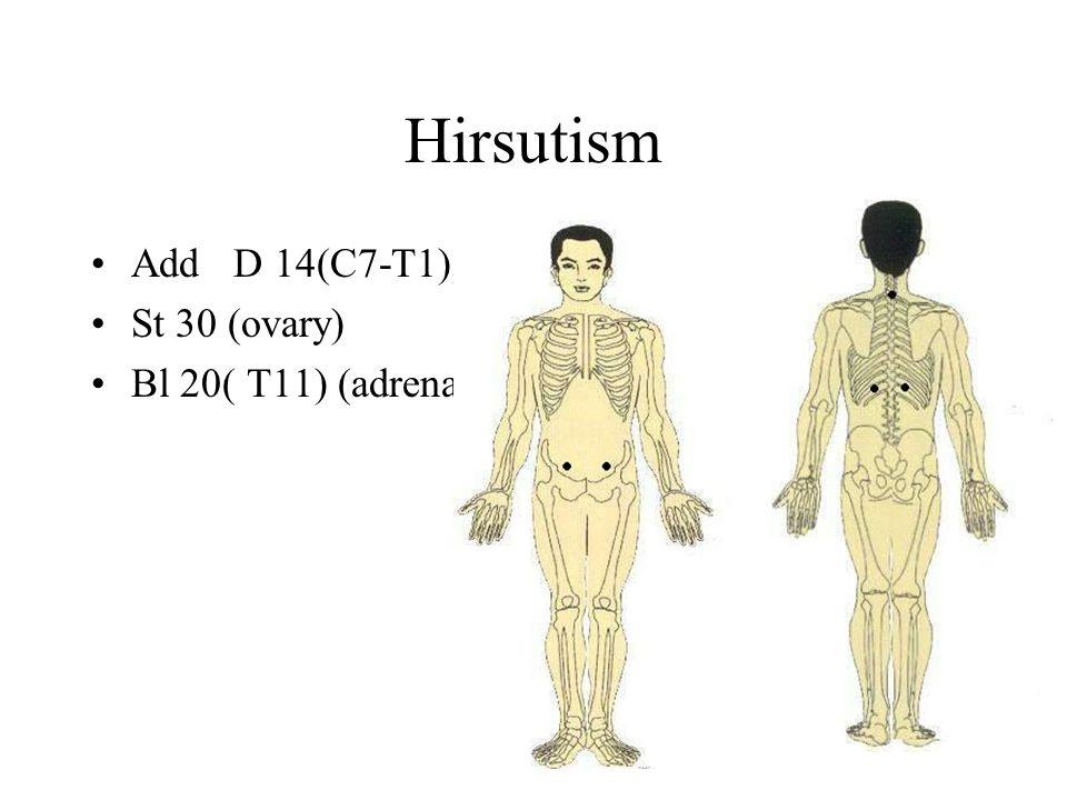 Hirsutism Add D 14(C7-T1), St 30 (ovary) Bl 20( T11) (adrenal)