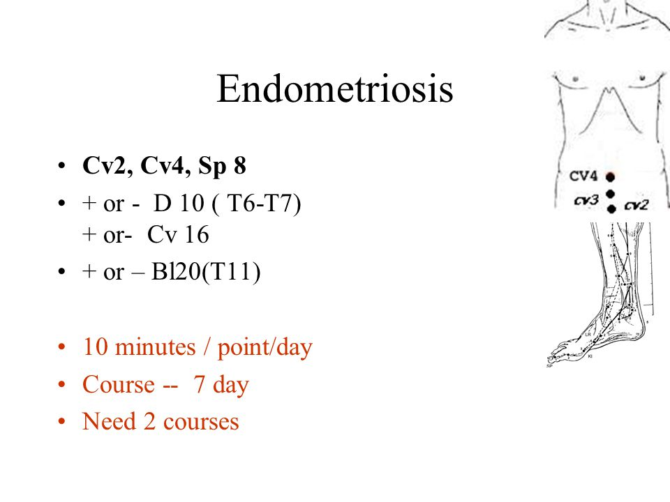 Endometriosis Cv2, Cv4, Sp 8 + or - D 10 ( T6-T7) + or- Cv 16 + or – Bl20(T11) 10 minutes / point/day Course -- 7 day Need 2 courses