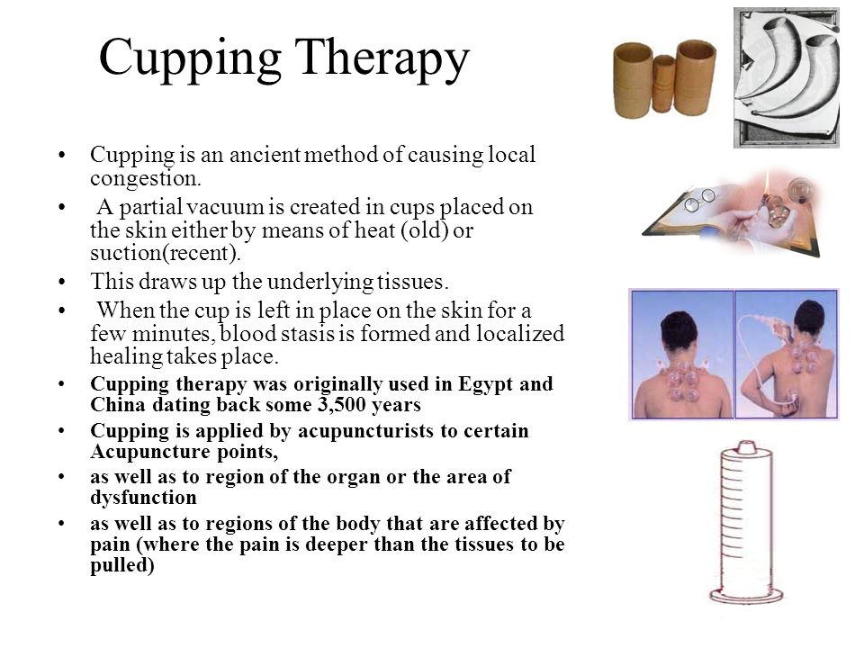 Cupping Therapy Cupping is an ancient method of causing local congestion.