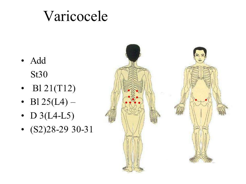 Varicocele Add St30 Bl 21(T12) Bl 25(L4) – D 3(L4-L5) (S2)28-29 30-31