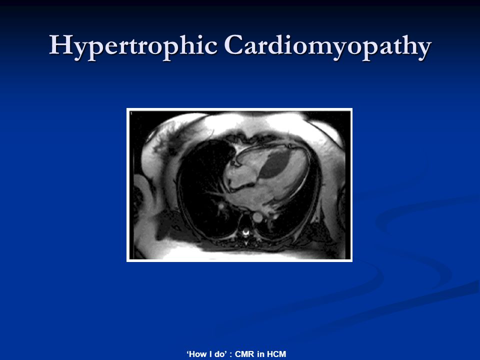 'How I do' : CMR in HCM Hypertrophic Cardiomyopathy