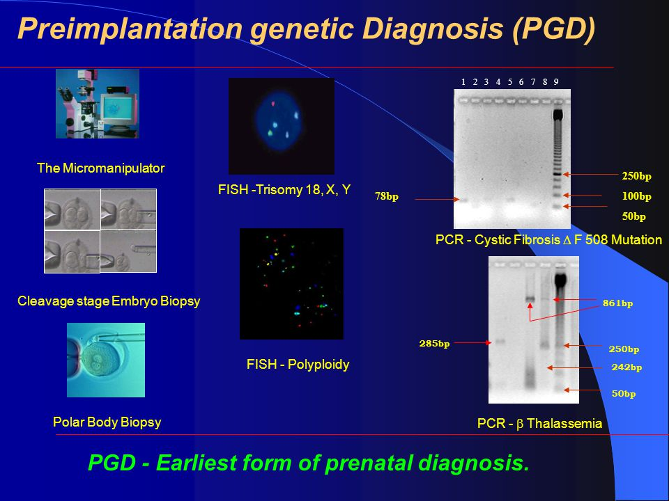 78bp 250bp 100bp 50bp 1 2 3 4 5 6 7 8 9 250bp 50bp 861bp 242bp 285bp Preimplantation genetic Diagnosis (PGD) The Micromanipulator Cleavage stage Embryo Biopsy Polar Body Biopsy FISH -Trisomy 18, X, Y FISH - Polyploidy PCR - Cystic Fibrosis  F 508 Mutation PCR -  Thalassemia PGD - Earliest form of prenatal diagnosis.