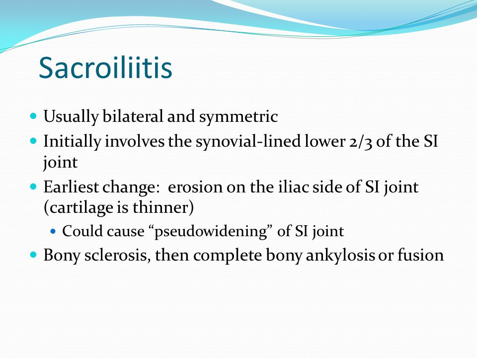 Sacroiliitis Usually bilateral and symmetric Initially involves the synovial-lined lower 2/3 of the SI joint Earliest change: erosion on the iliac sid