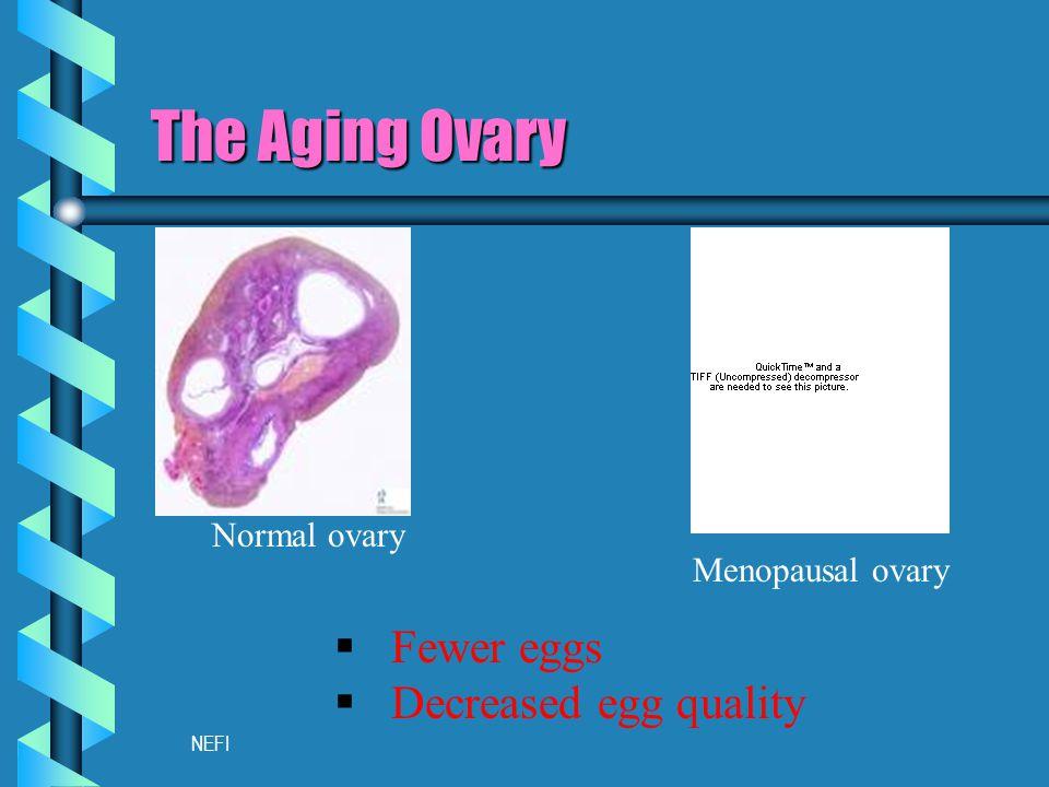 NEFI Menopausal ovary The Aging Ovary Normal ovary  Fewer eggs  Decreased egg quality