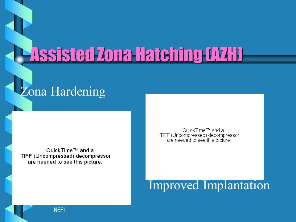 NEFI Assisted Zona Hatching (AZH) Improved Implantation Zona Hardening