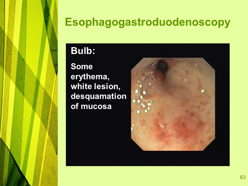 63 Bulb: Some erythema, white lesion, desquamation of mucosa Esophagogastroduodenoscopy