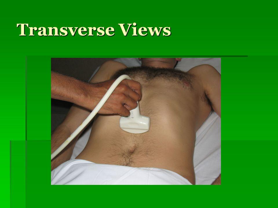 Transverse Views