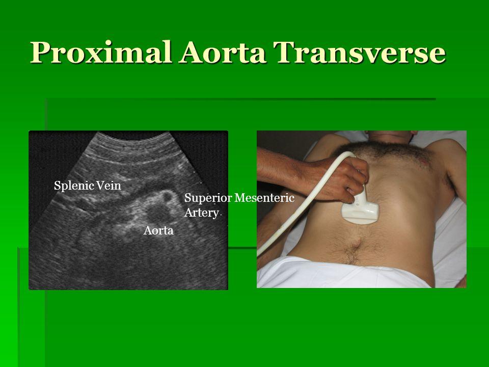 Proximal Aorta Transverse Splenic Vein Superior Mesenteric Artery Aorta