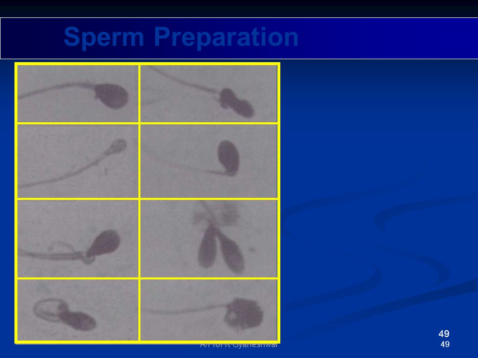 49A/Prof R Gyaneshwar 49 Sperm Preparation