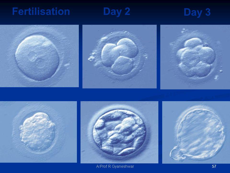 57A/Prof R Gyaneshwar Fertilisation Day 2 Day 3 Day 4 Day 5 Blastocyst Day 5 Blastocyst