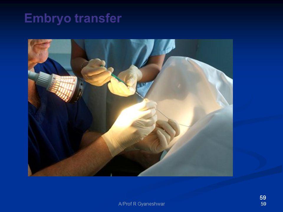 59A/Prof R Gyaneshwar 59 Embryo transfer