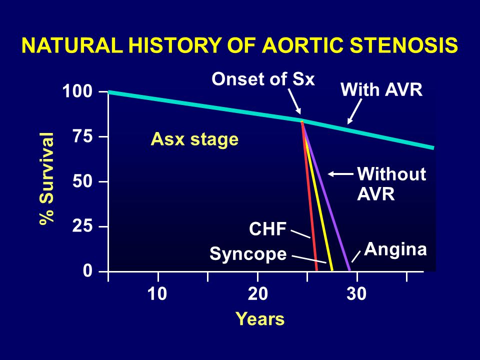 NATURAL HISTORY OF AORTIC STENOSIS % Survival 100 75 50 25 0 Onset of Sx With AVR Without AVR Asx stage CHF Angina Syncope 102030 Years