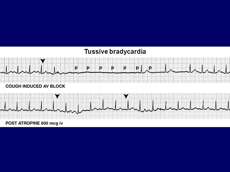 Tussive bradycardia