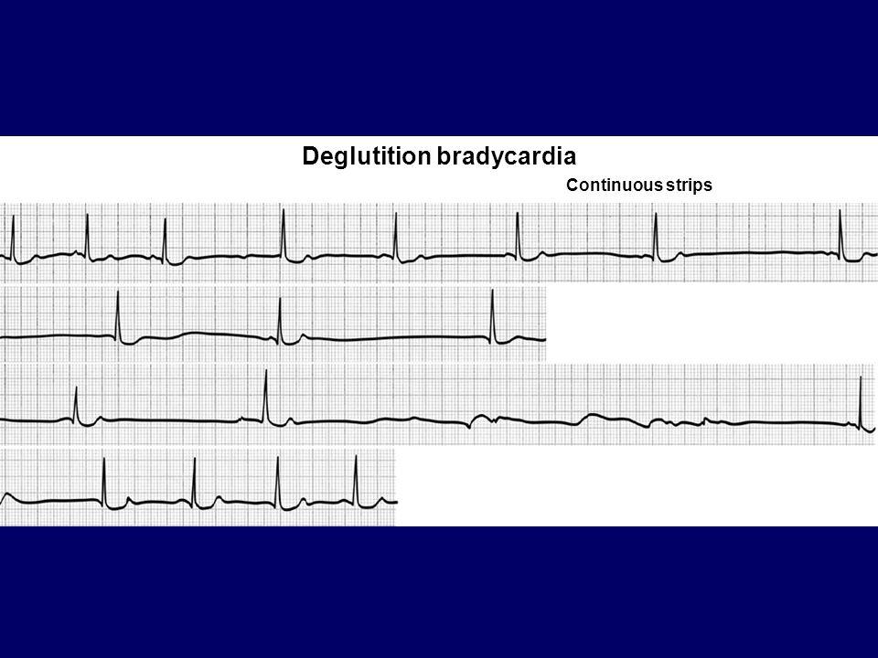 Deglutition bradycardia Continuous strips