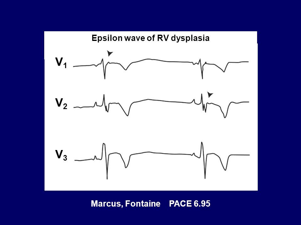 Epsilon wave of RV dysplasia Marcus, Fontaine PACE 6.95 V1V1 V2V2 V3V3