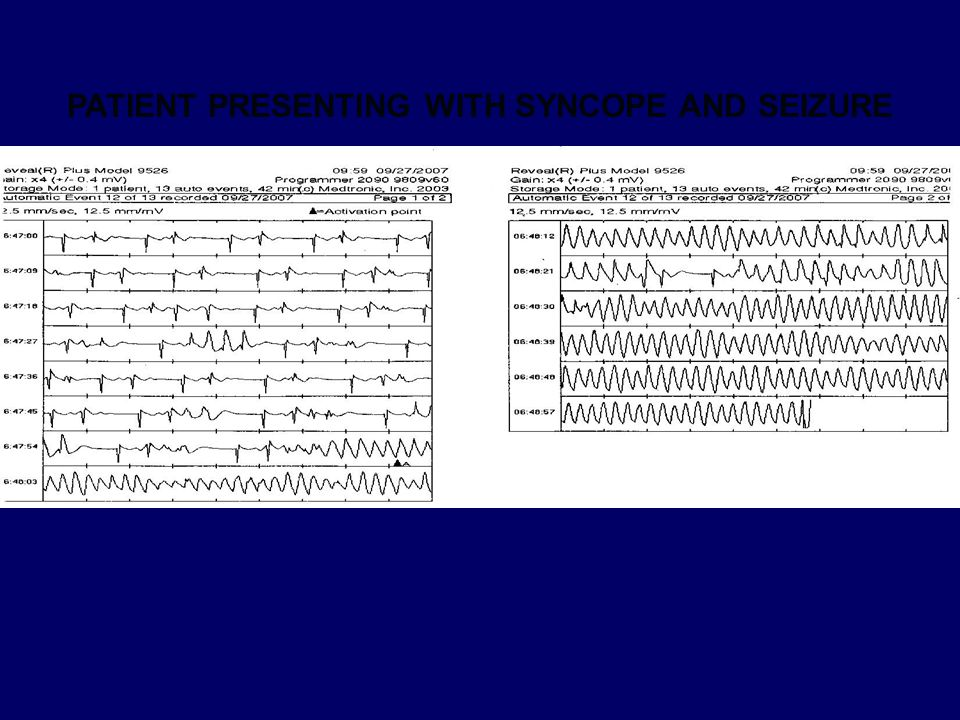 PATIENT PRESENTING WITH SYNCOPE AND SEIZURE