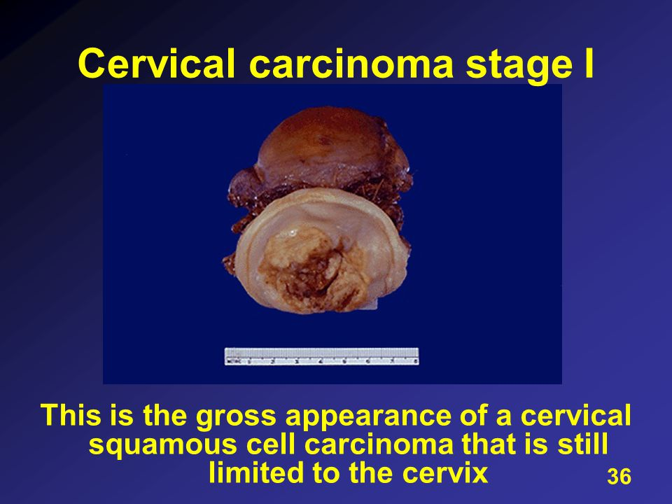 This is the gross appearance of a cervical squamous cell carcinoma that is still limited to the cervix Cervical carcinoma stage I 36