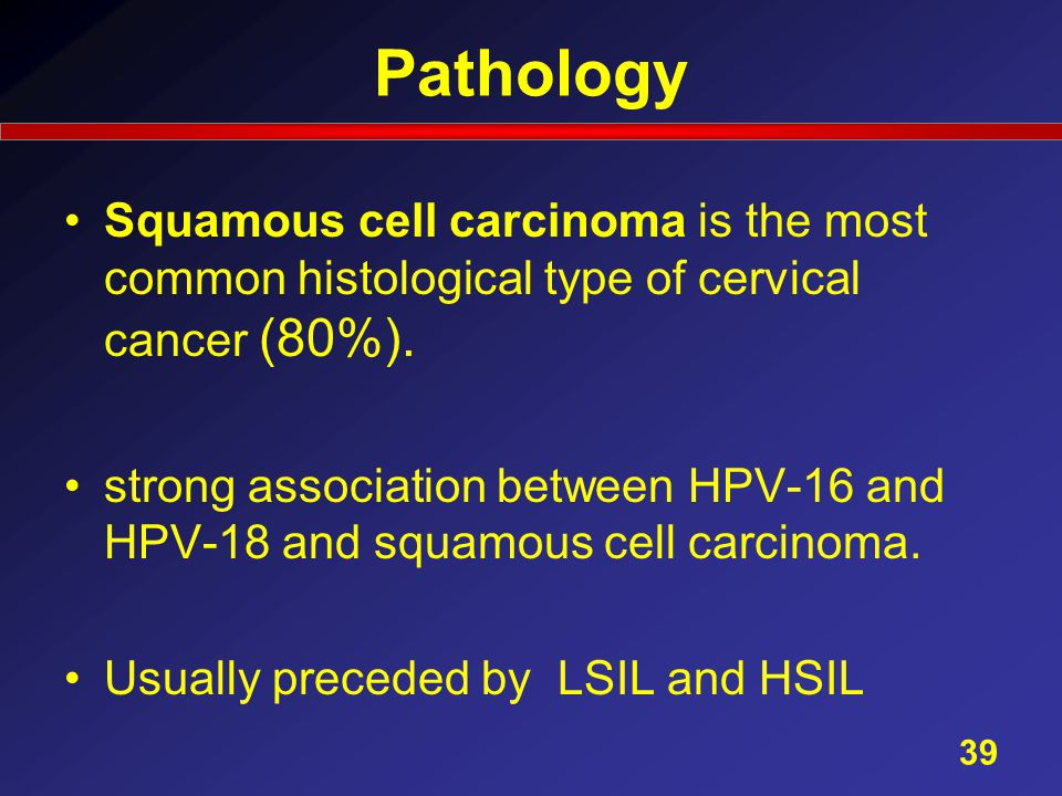 Pathology Squamous cell carcinoma is the most common histological type of cervical cancer (80%).