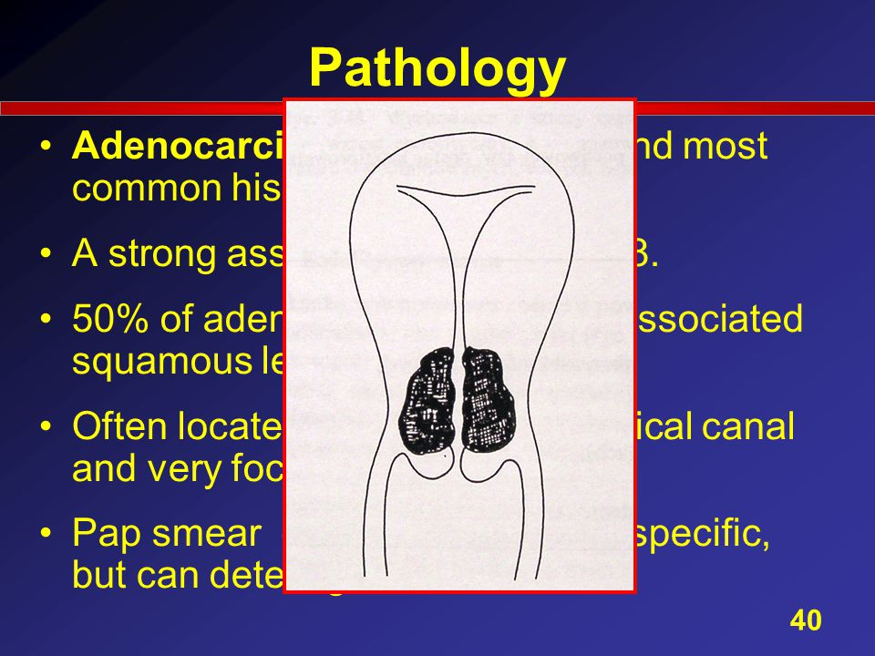 Pathology Adenocarcinoma (9,3%) - second most common histological type.